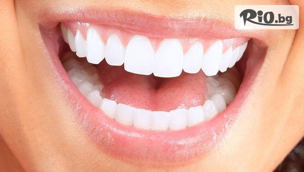 Микропротезa до 4 липсващи зъба