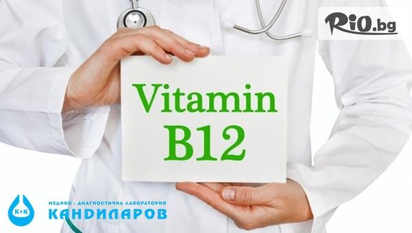 Изследване на витамин B12 в организма - без или със изследване на нивата на фолиева киселина и хомоцистеин, от СМДЛ Кандиларов