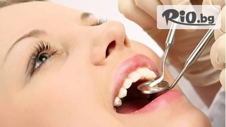 Почистване на зъбен камък с ултразвук и полиране на зъбите за 21,90 лв. от Д-р Борисова