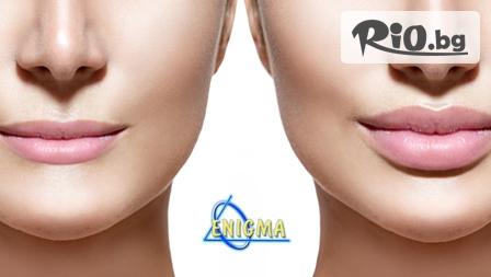 Неустоима визия! Уголемяване на устни или попълване на бръчки с хиалуронова киселина 1 ml. Filler, от Центрове Енигма