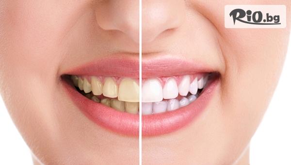 Професионално избелване на зъби с LED лампа-робот Beyond Polus, от Стоматологичен кабинет Д-р Лозеви