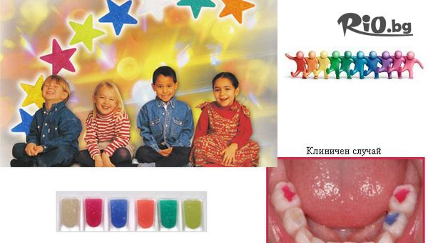 Фотополимерна детска пломба със специални цветни ефекти в 7 цвята, от Дентална клиника Персенк