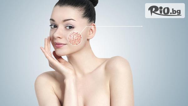 Премахване на капиляри на лице с E-LIGHT лазерна технология с 59% отстъпка, в Студио за красота Хубава жена
