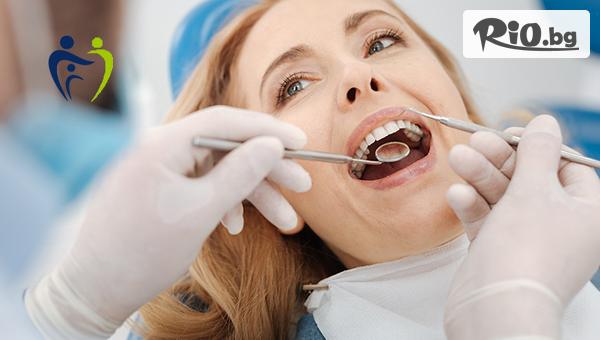 Почистване на зъбен камък + полиране