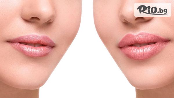 Безиглено влагане на 100% хиалуронова киселина с ултразвук за уголемяване на устни, от Козметично студио FACEandBODY SHOP