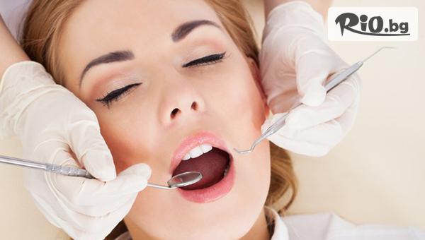 Бондинг /фотополимерна фасета/ на един зъб, от Дентална клиника Персенк