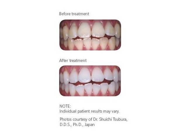 Зъболекар Галерия #1